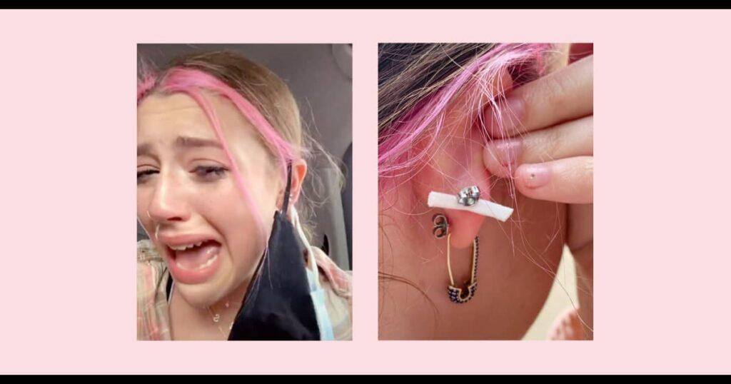Adolescente tiene una mascarilla perforada en la oreja en un loco accidente